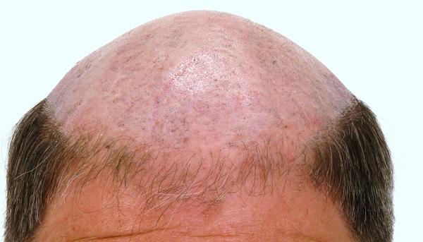 Medical Hair, expertos en Técnica FUE